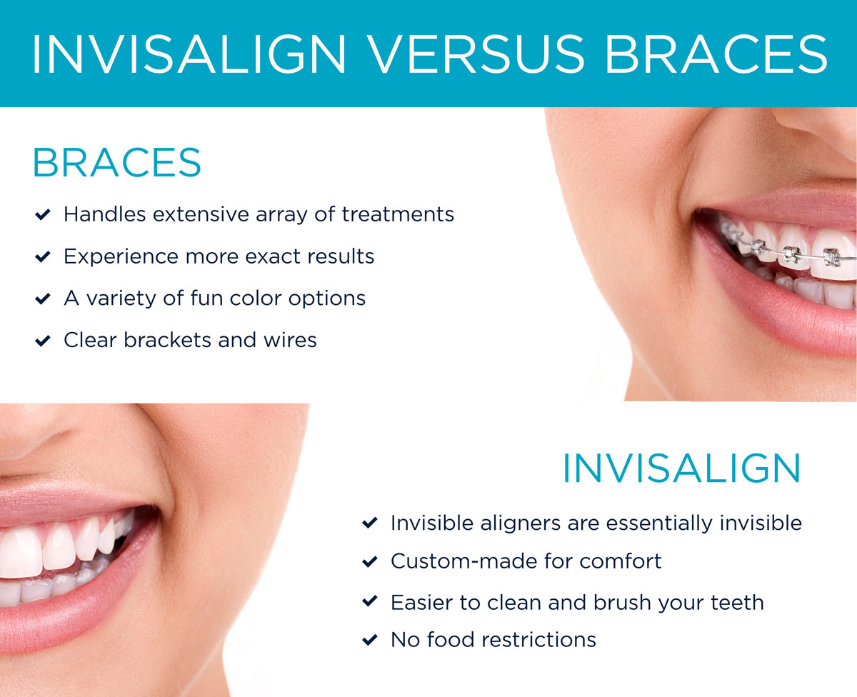 Invisalign--Braces-Mobile---Version-2---Kirkpatrick-&-Lai